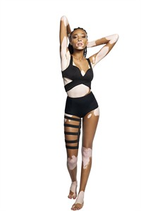 """America's Next Top Model"" contestant Chantelle Brown-Young is seen in this undated handout photo. The Toronto model has vitiligo, a skin condition in which a loss of pigment causes the skin to appear white. THE CANADIAN PRESS/HO - City"