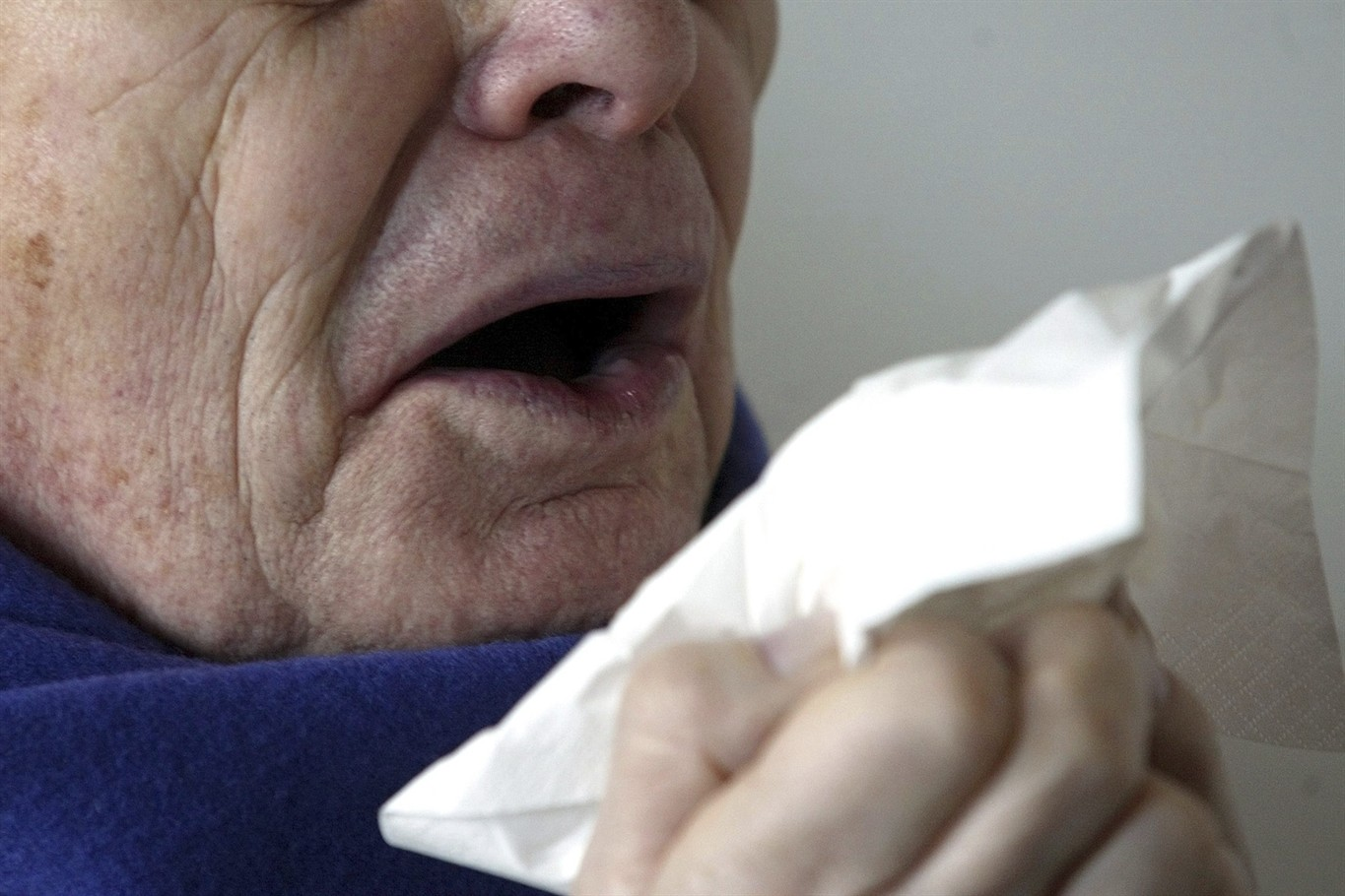 Man's throat ruptured after holding his nose during forceful sneeze