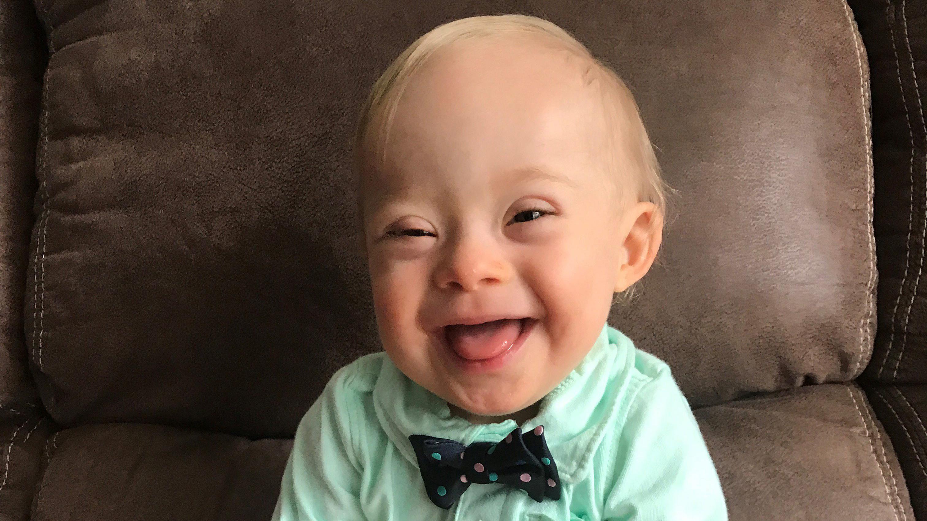 Самые красивые дети с синдромом дауна фото