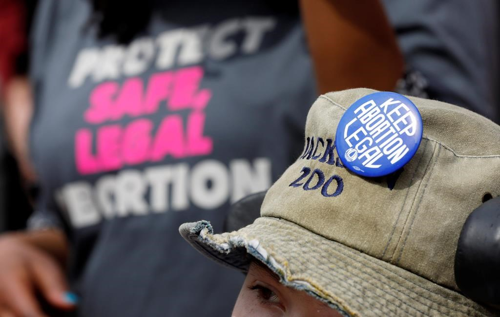 MS governor signs 'heartbeat' abortion law
