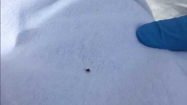 Ticks in Toronto: Tips to avoid Lyme disease this summer